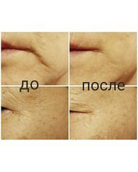 Революционное моментально разглаживающее морщины средство с пептидным и SYN-AKE комплексами agefit Instant Anti-Wrinkle Concentrate, 15мл. + 15мл.