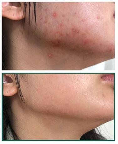 Кислотная сыворотка для проблемной кожи SOME BY MI AHA BHA PHA 30 Days Miracle Serum, 50мл.