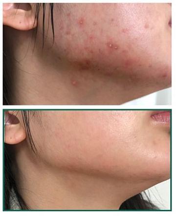 Восстанавливающий крем для проблемной кожи SOME BY MI AHA-BHA-PHA 30 Days Miracle Cream, 60гр.